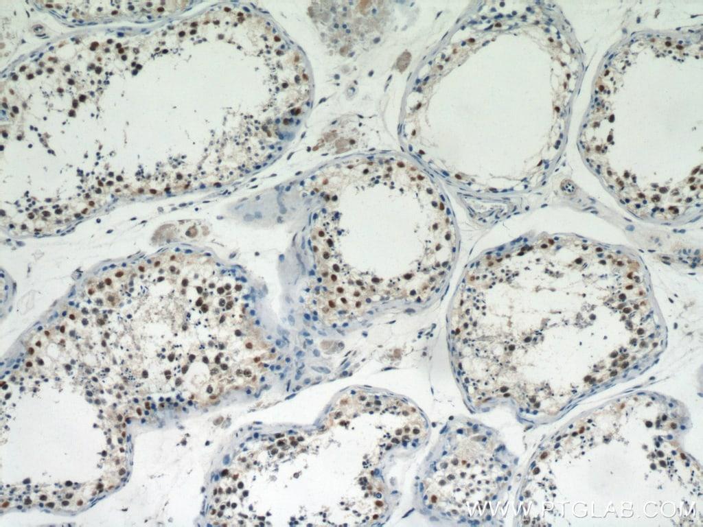 PRMT6 Antibody in Immunohistochemistry (Paraffin) (IHC (P))