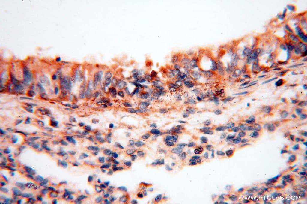 SEC13 Antibody in Immunohistochemistry (Paraffin) (IHC (P))