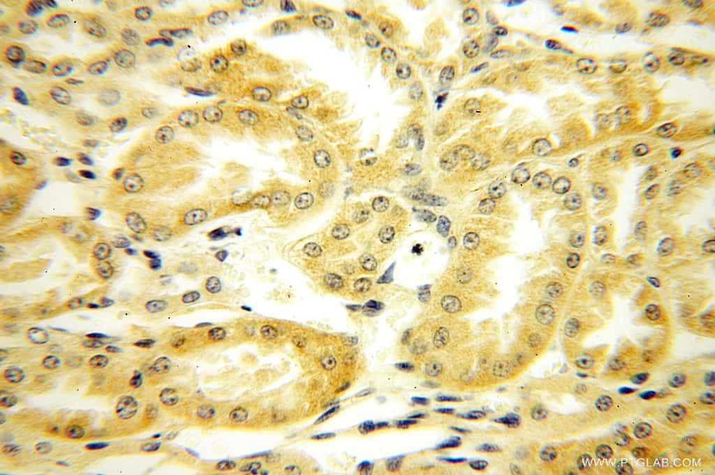PLEKHA8 Antibody in Immunohistochemistry (Paraffin) (IHC (P))