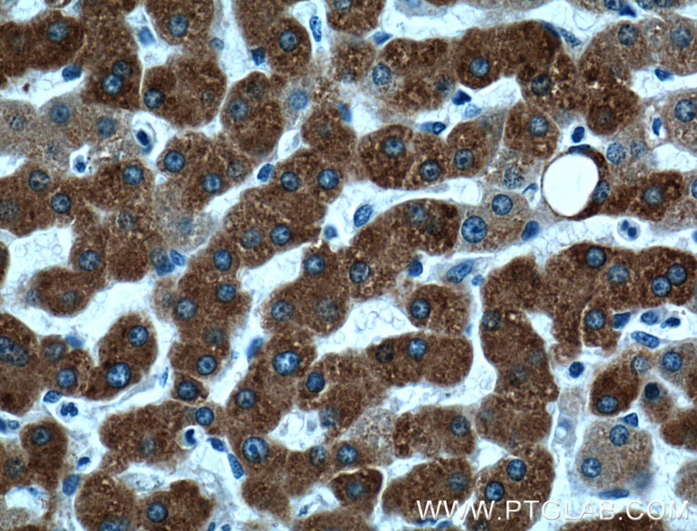 ECE2 Antibody in Immunohistochemistry (Paraffin) (IHC (P))