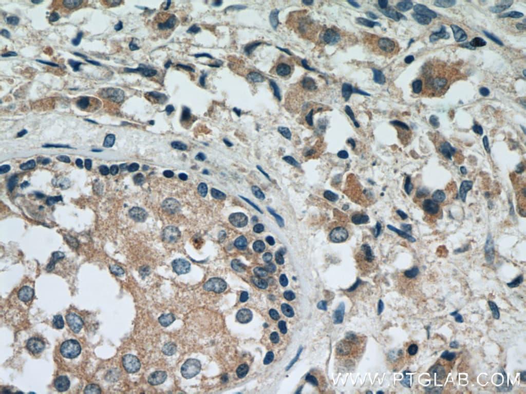 RAB2 Antibody in Immunohistochemistry (Paraffin) (IHC (P))