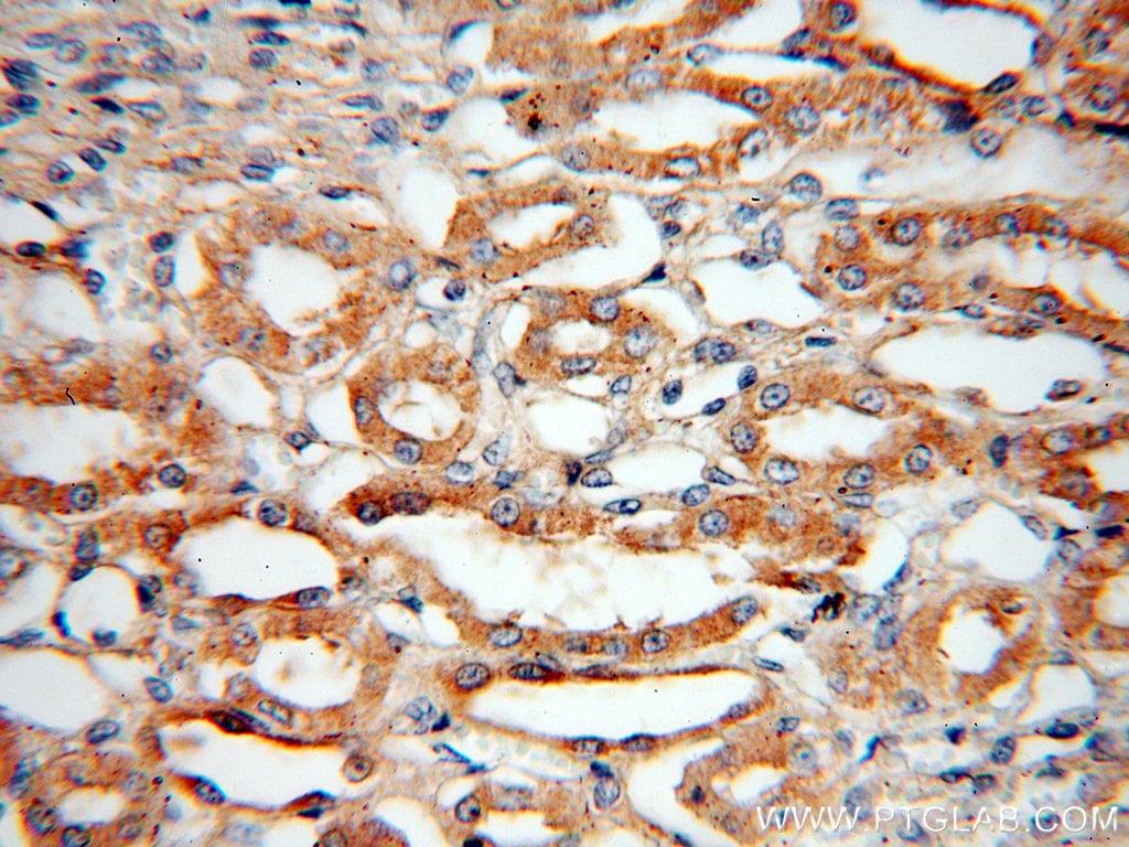 Bif-1 Antibody in Immunohistochemistry (Paraffin) (IHC (P))