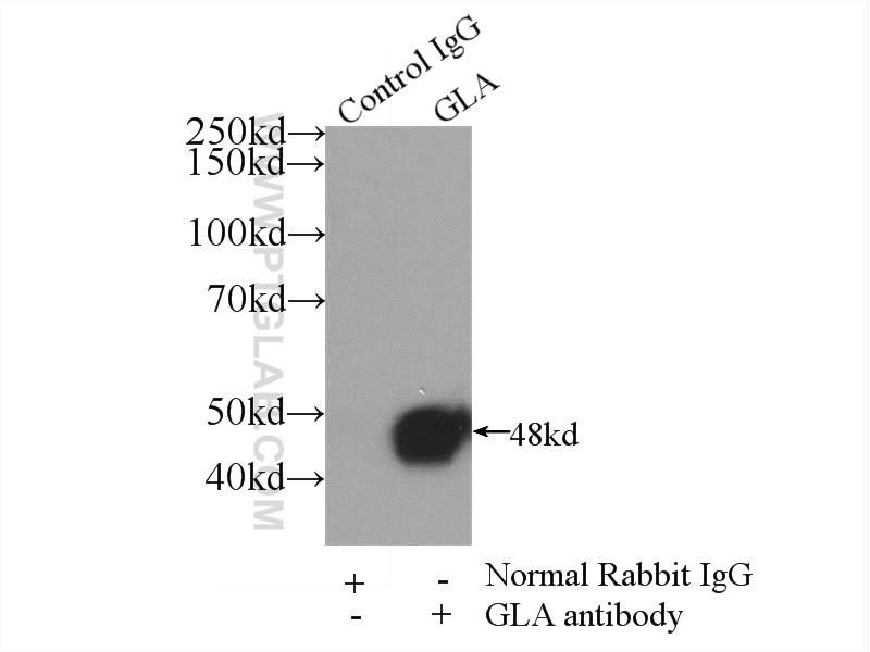 Alpha galactosidase A Antibody in Immunoprecipitation (IP)