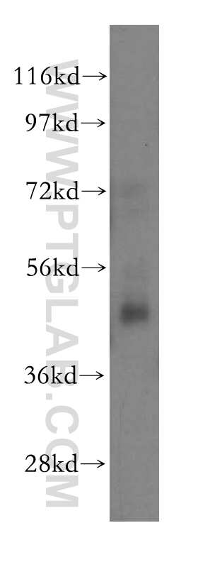 NSUN5 Antibody in Western Blot (WB)