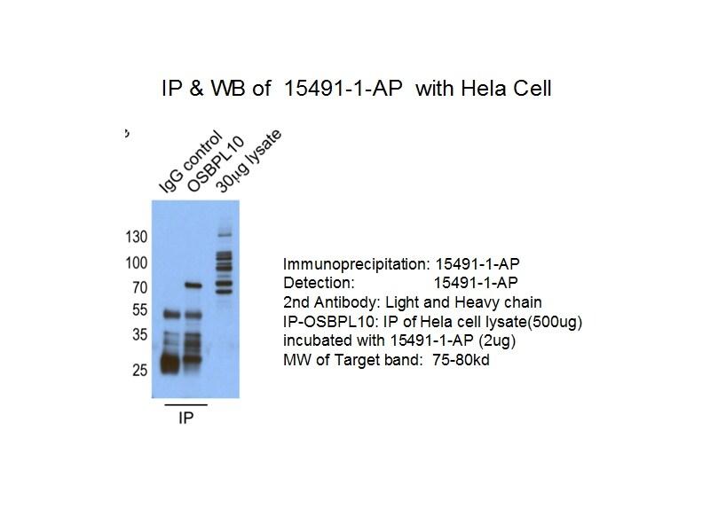 OSBPL10 Antibody in Immunoprecipitation (IP)