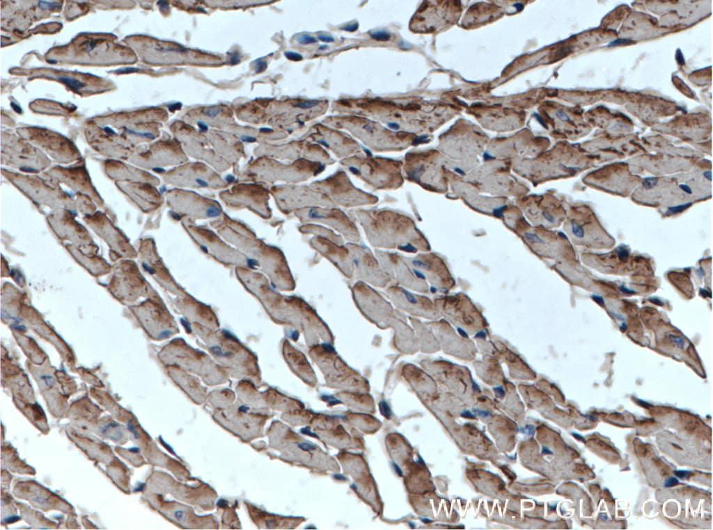 Cardiac Troponin T Antibody in Immunohistochemistry (Paraffin) (IHC (P))