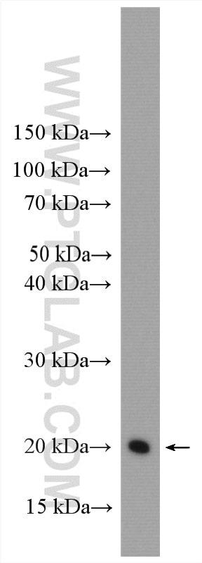 HRAS Antibody in Western Blot (WB)