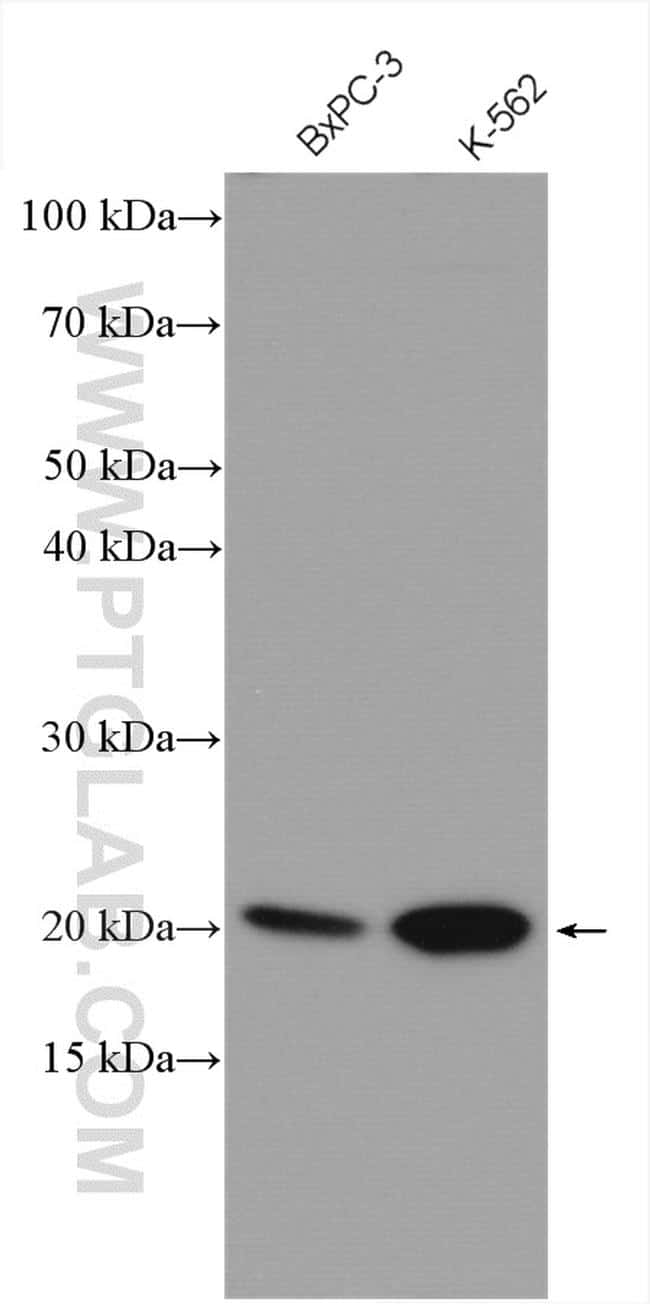 MRPL11 Antibody in Western Blot (WB)
