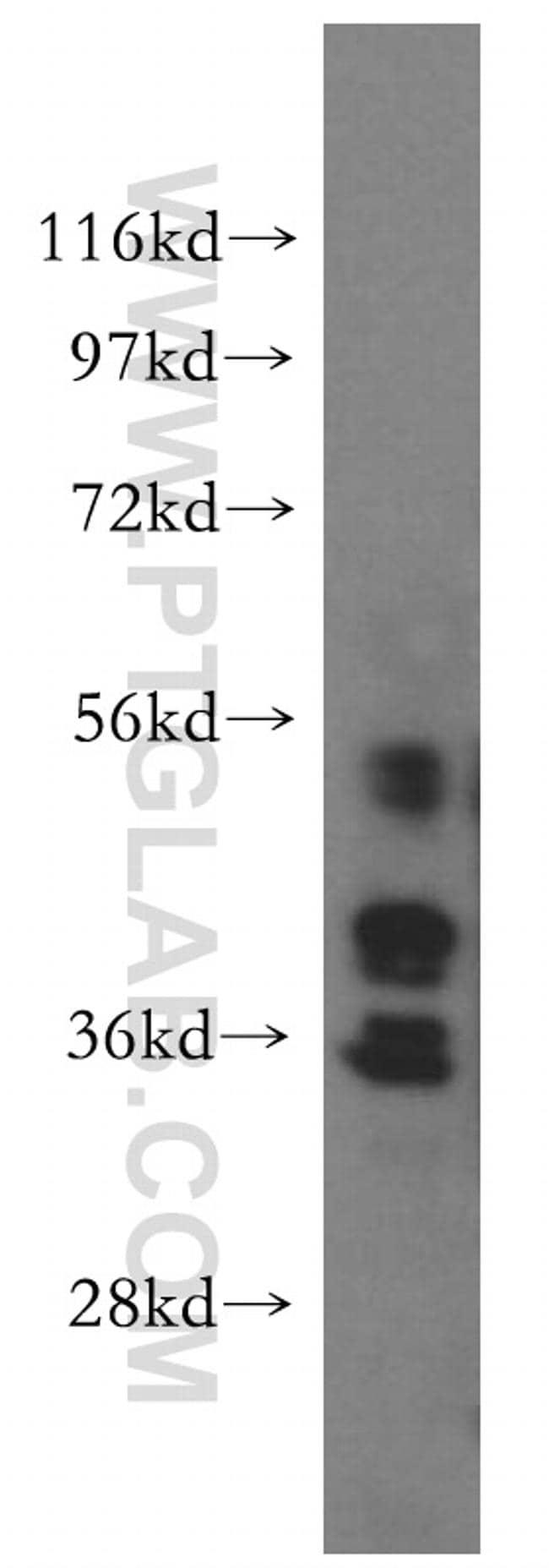 WDR5 Antibody in Western Blot (WB)