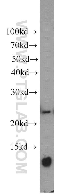PAIP2 Antibody in Western Blot (WB)