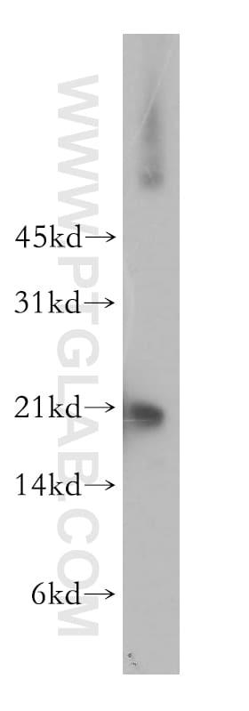 SELS Antibody in Western Blot (WB)