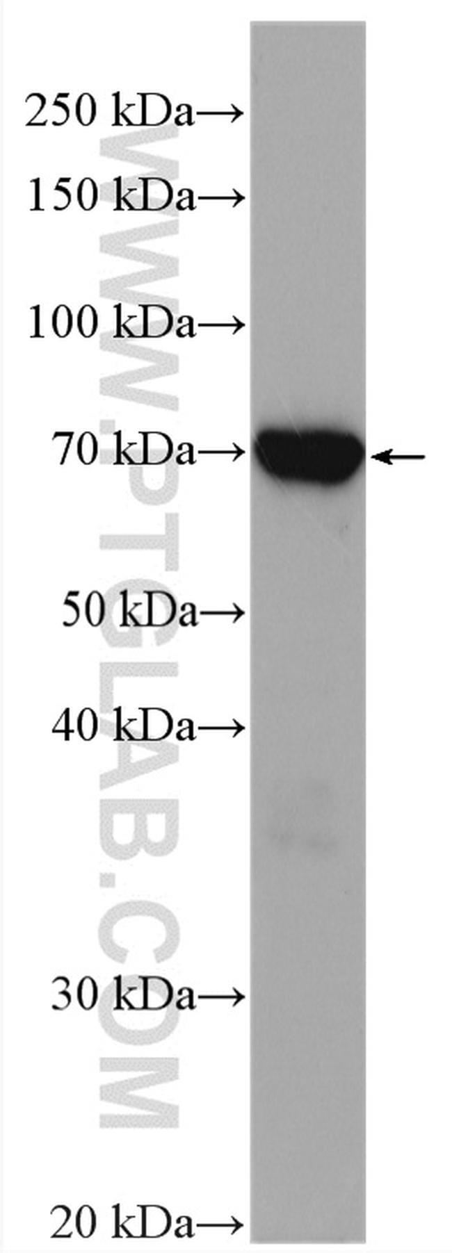 ZAP70 Antibody in Western Blot (WB)