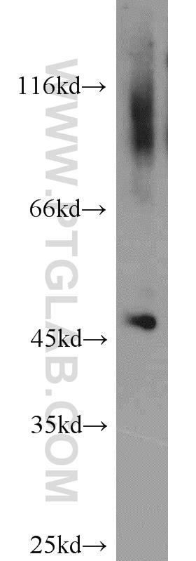 ACOT2 Antibody in Western Blot (WB)
