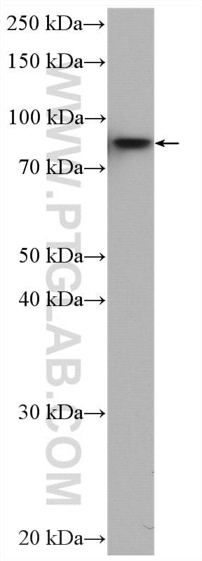 IKBKB Antibody in Western Blot (WB)