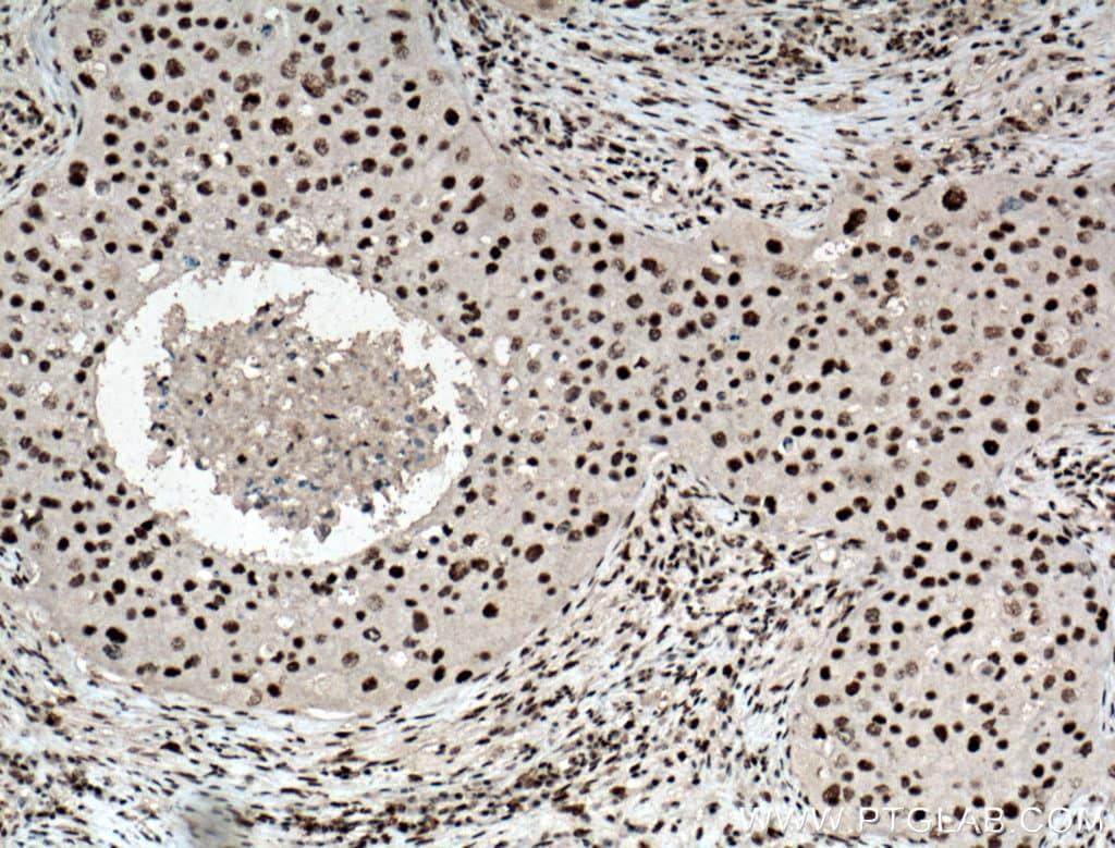 HEXIM1 Antibody in Immunohistochemistry (Paraffin) (IHC (P))