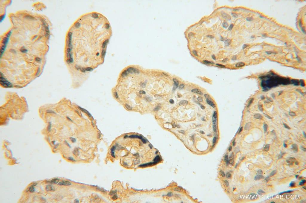 NARS2 Antibody in Immunohistochemistry (Paraffin) (IHC (P))