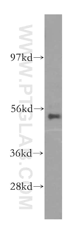 NARS2 Antibody in Western Blot (WB)