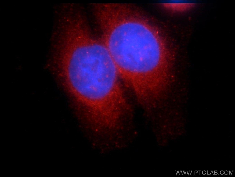 SNX9 Antibody in Immunofluorescence (IF)