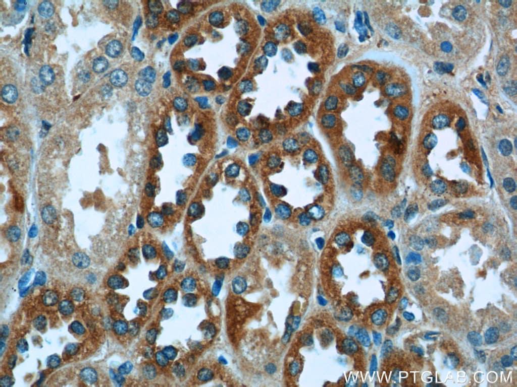 P3H2 Antibody in Immunohistochemistry (Paraffin) (IHC (P))