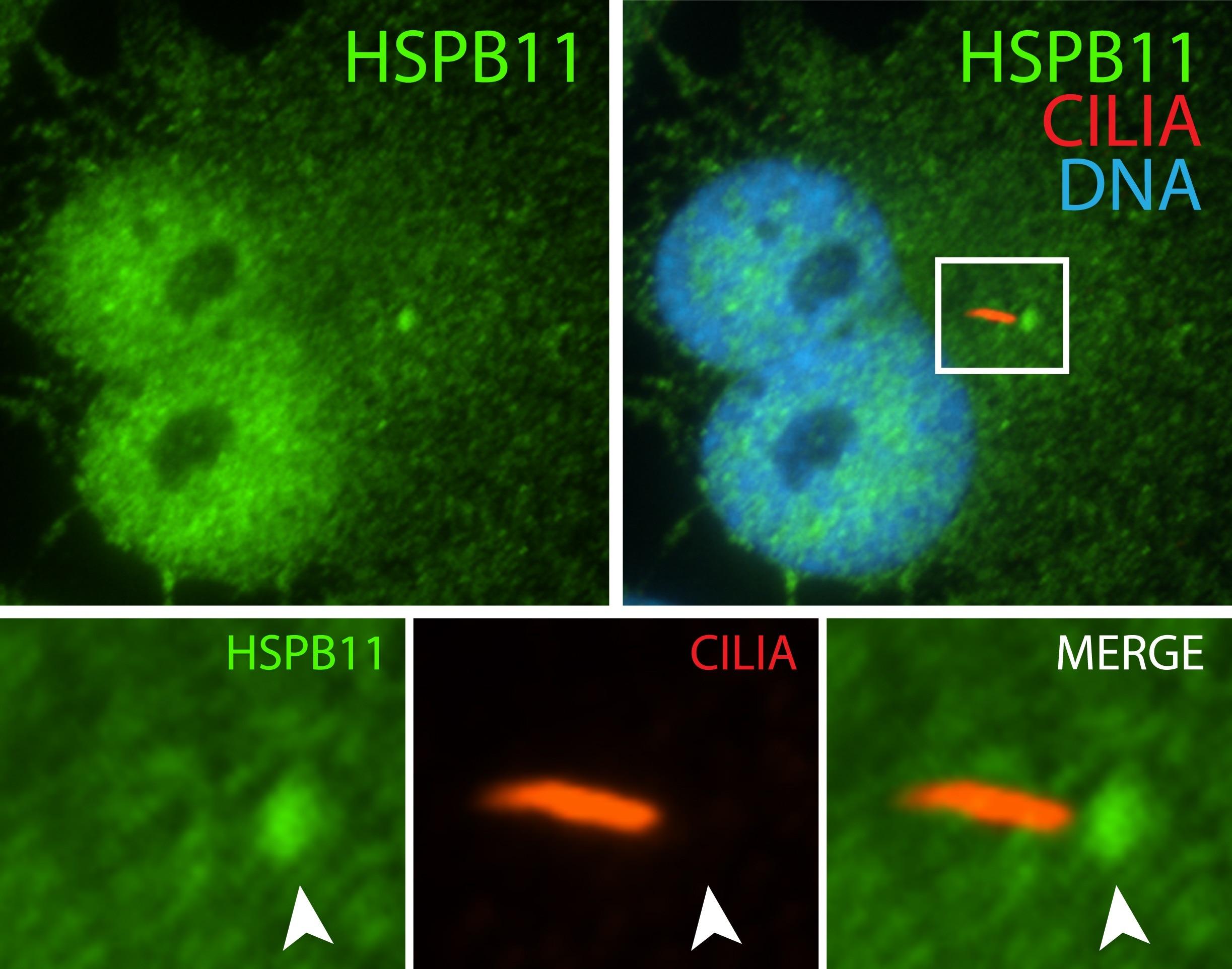 IFT25 Antibody in Immunofluorescence (IF)