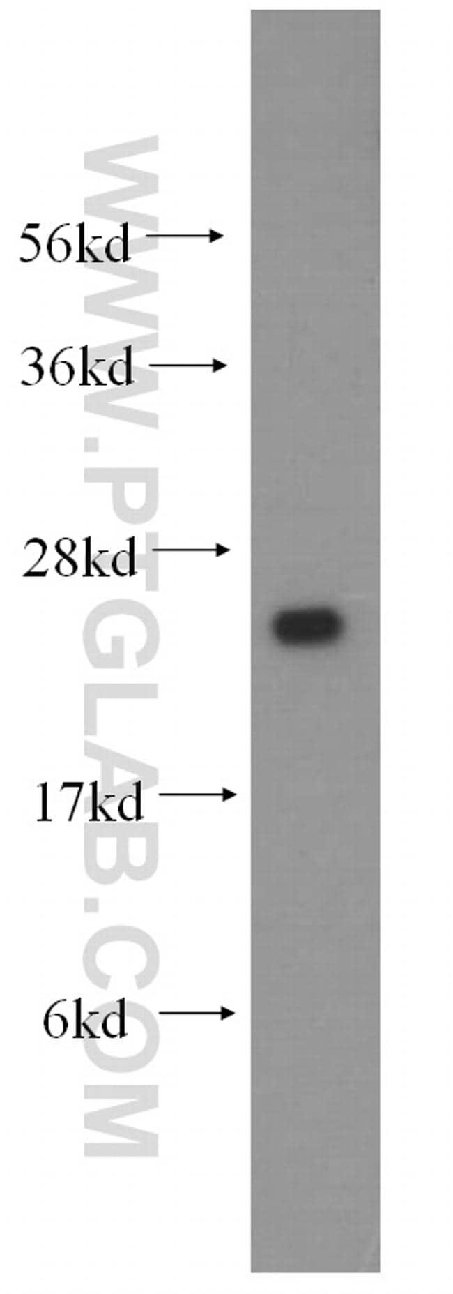 IFT25 Antibody in Western Blot (WB)