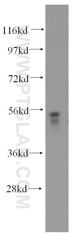 MEK5 Antibody in Western Blot (WB)