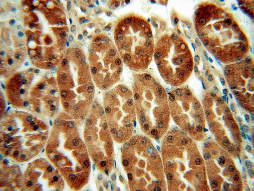 LHPP Antibody in Immunohistochemistry (Paraffin) (IHC (P))