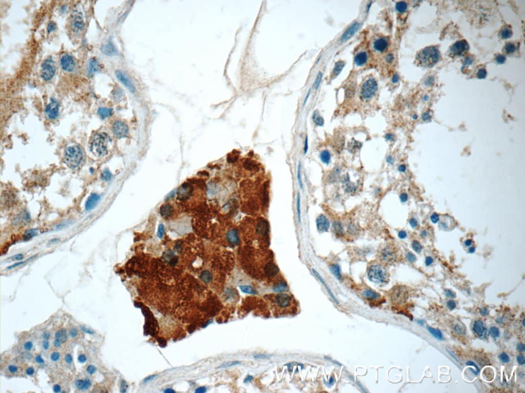 CHMP1A Antibody in Immunohistochemistry (Paraffin) (IHC (P))