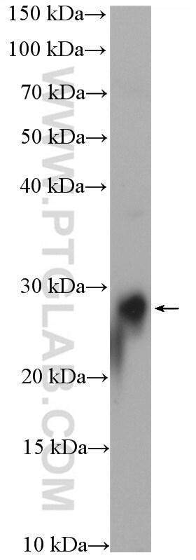 RAB3B Antibody in Western Blot (WB)