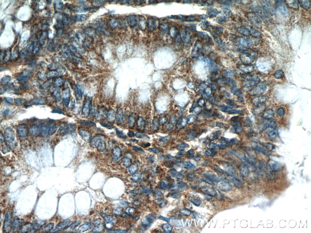 HTRA2 Antibody in Immunohistochemistry (Paraffin) (IHC (P))