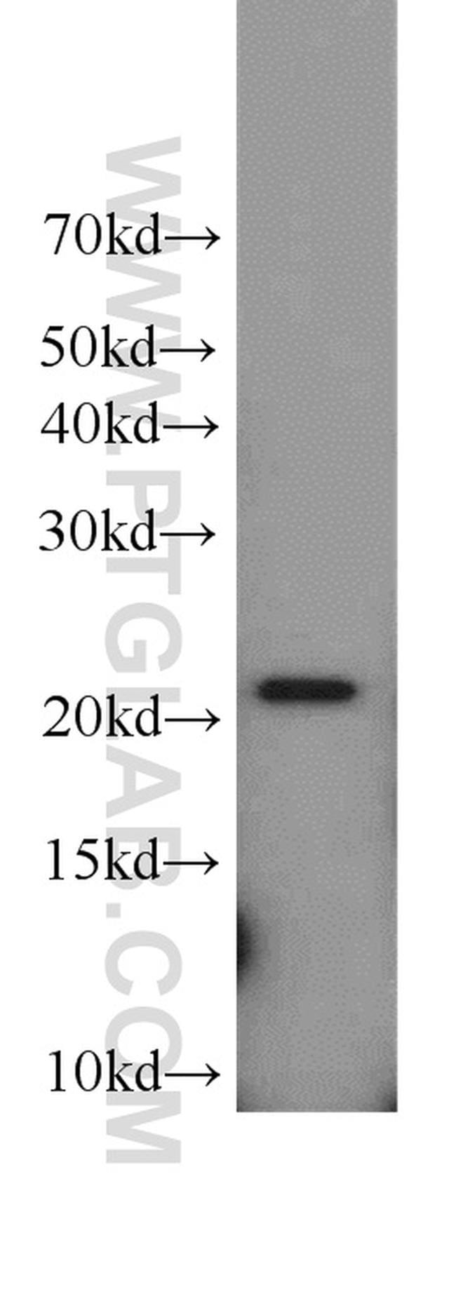 TNFAIP8 Antibody in Western Blot (WB)