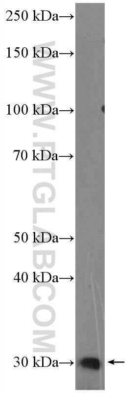 Calpain S2 Antibody in Western Blot (WB)