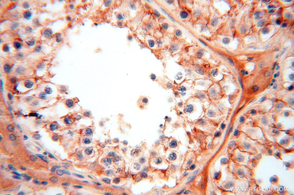 FXYD6 Antibody in Immunohistochemistry (Paraffin) (IHC (P))