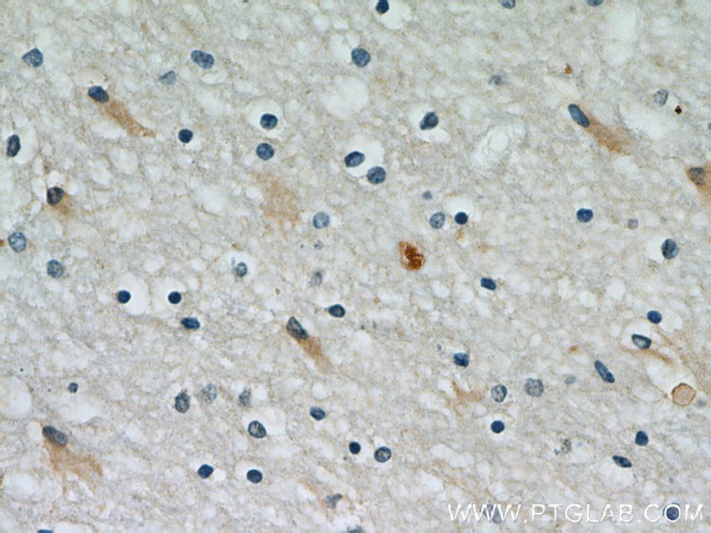 PRDX1 Antibody in Immunohistochemistry (Paraffin) (IHC (P))