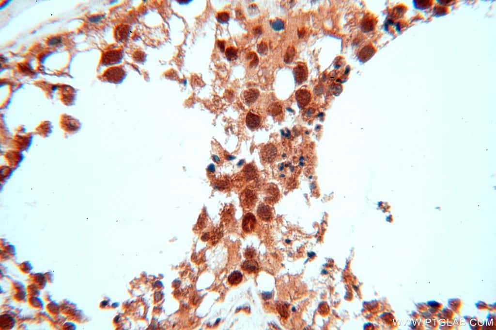 MCL1L Antibody in Immunohistochemistry (Paraffin) (IHC (P))