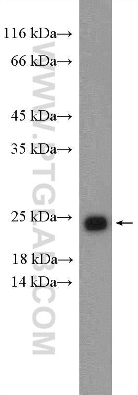 RAB11A/B Antibody in Western Blot (WB)