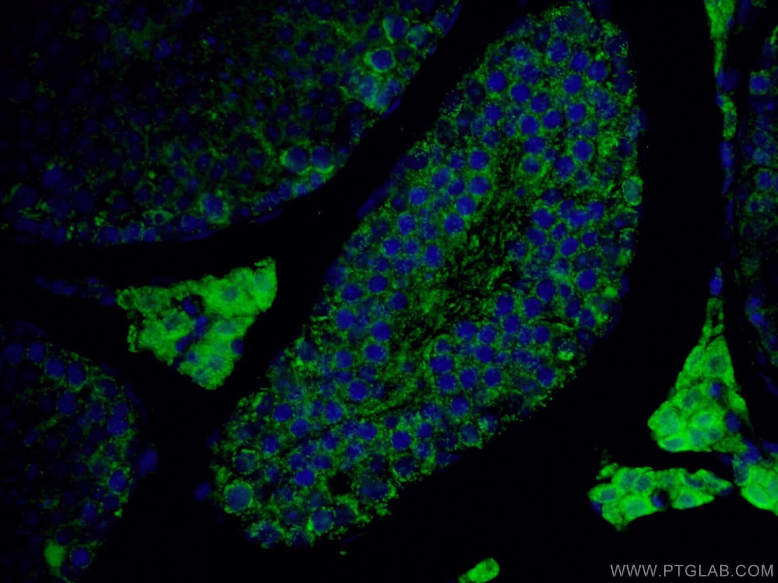 ALDH1A1 Antibody in Immunofluorescence (IF)