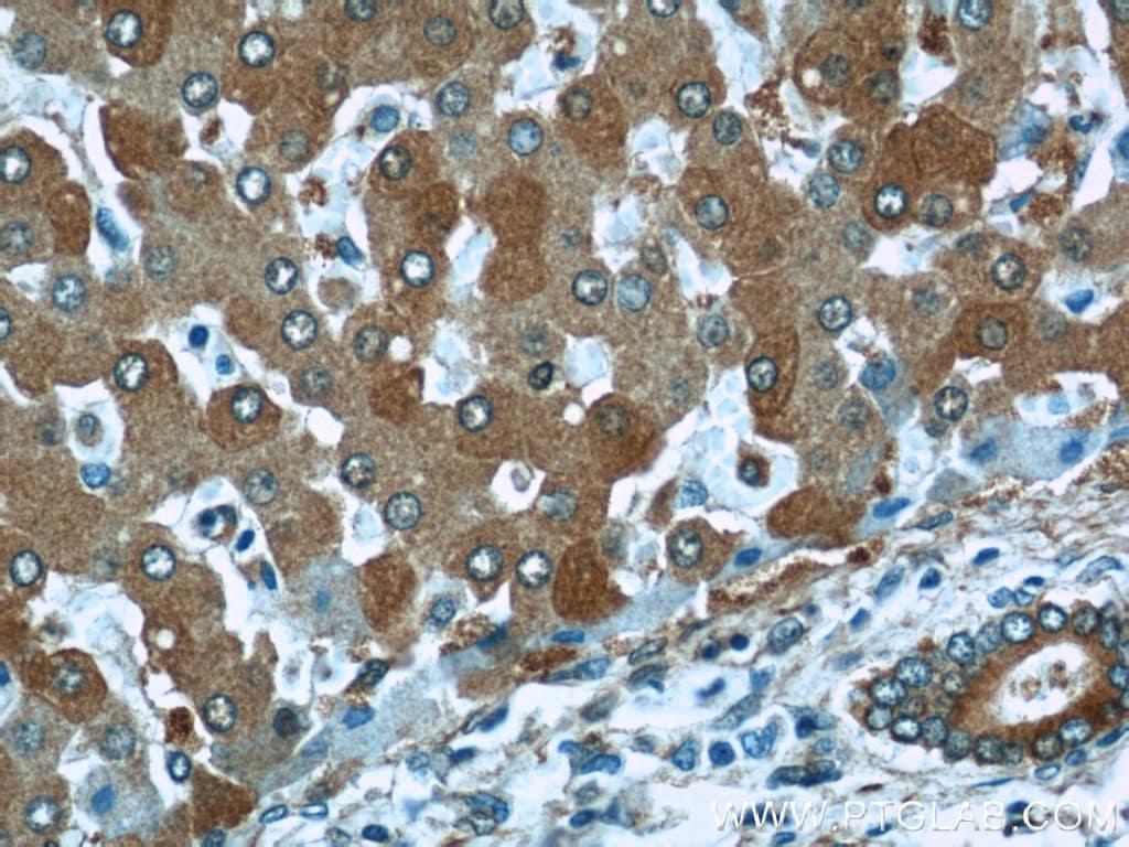 ALDH1A1 Antibody in Immunohistochemistry (Paraffin) (IHC (P))