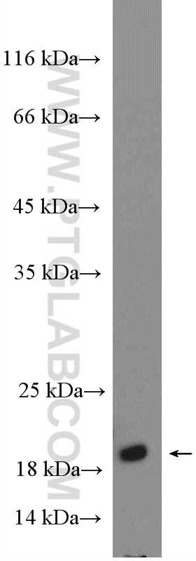 RHEB Antibody in Western Blot (WB)