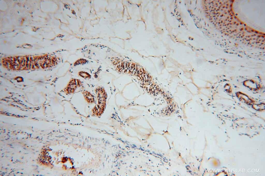 EXOSC4 Antibody in Immunohistochemistry (Paraffin) (IHC (P))
