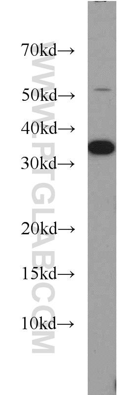 CAPZA2 Antibody in Western Blot (WB)