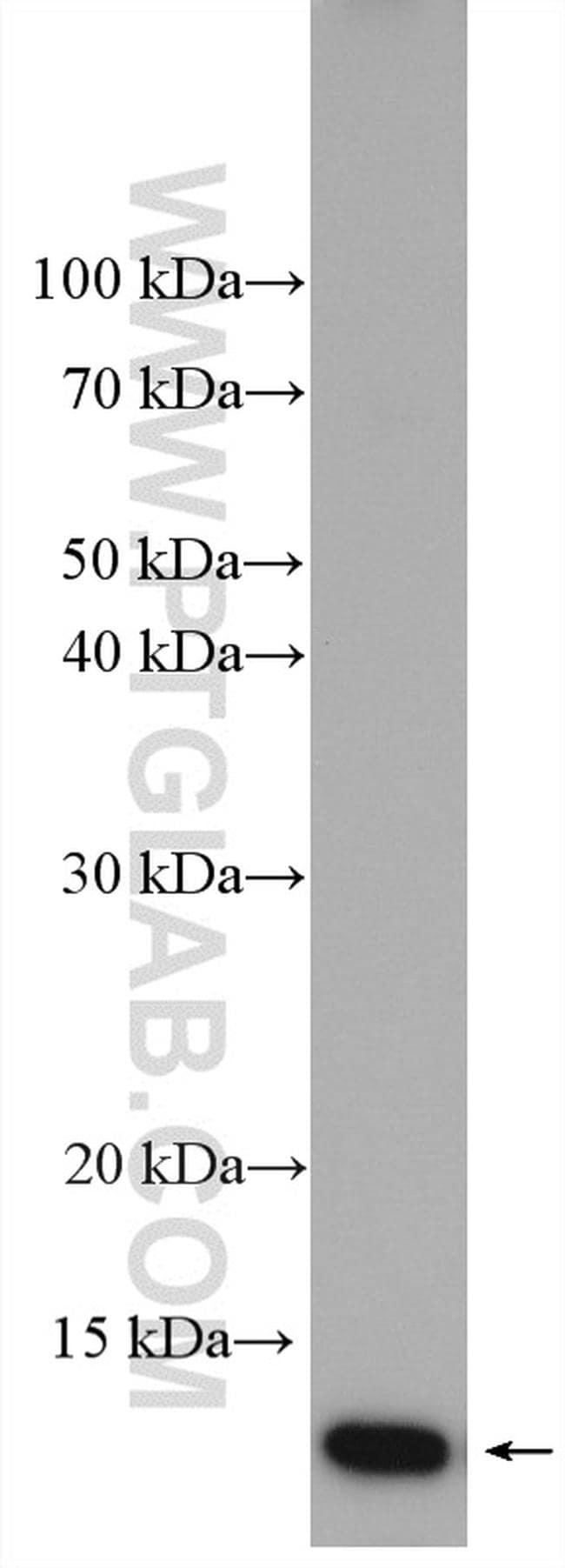 Cystatin A Antibody in Western Blot (WB)