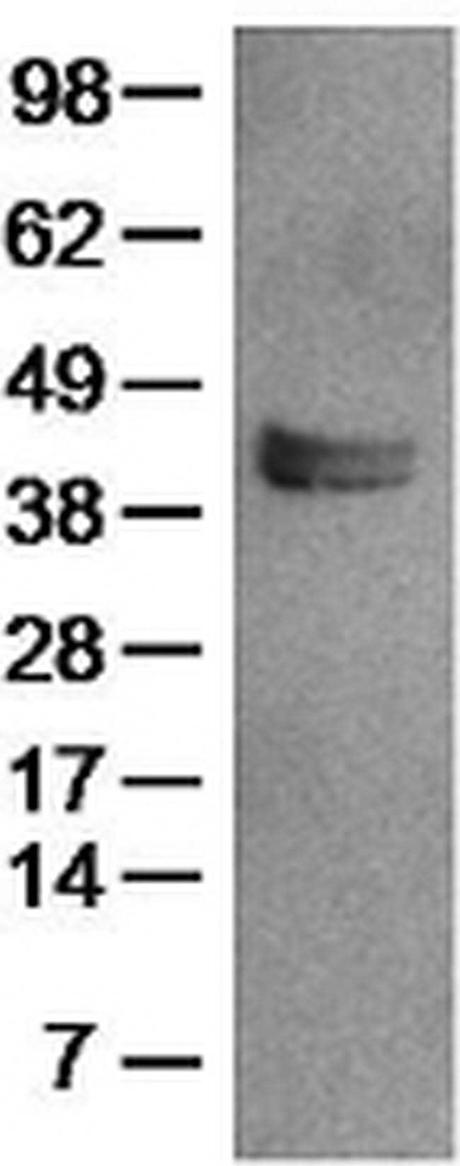 LAP (Latency Associated peptide) Antibody in Western Blot (WB)