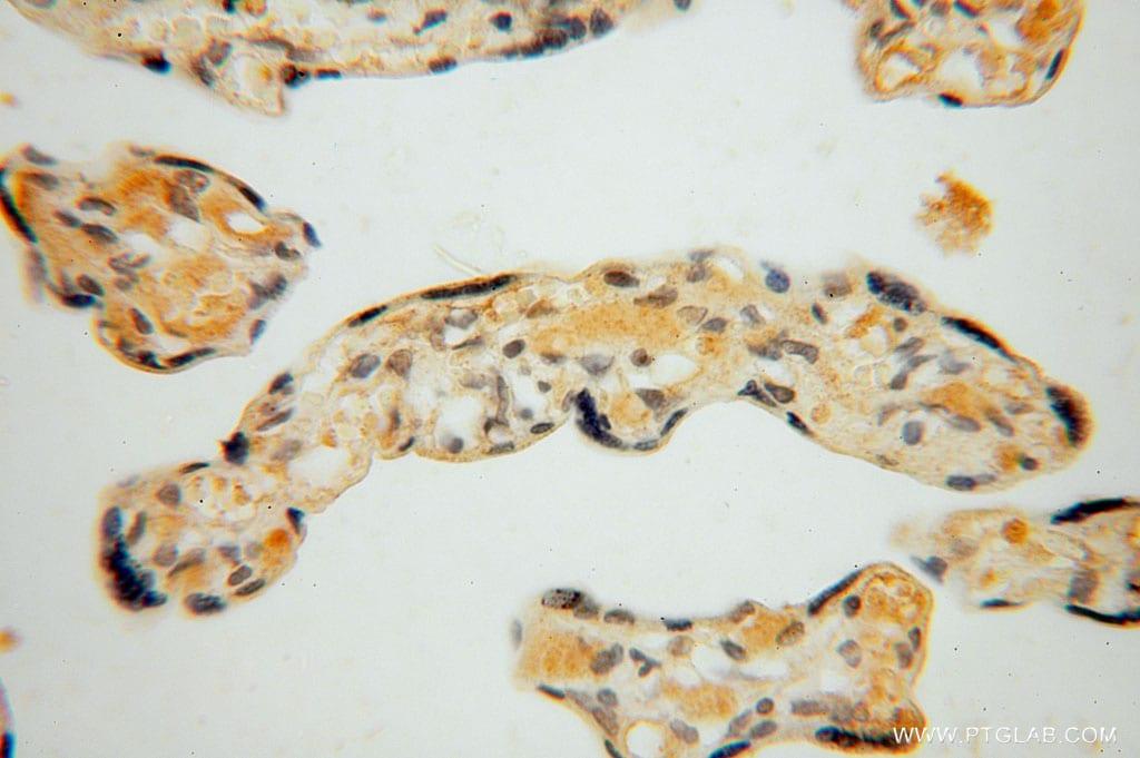 ARG1 Antibody in Immunohistochemistry (Paraffin) (IHC (P))