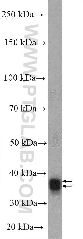ARG1 Antibody in Western Blot (WB)
