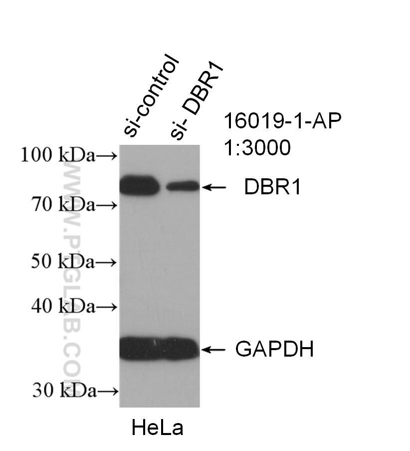 DBR1 Antibody in Western Blot (WB)