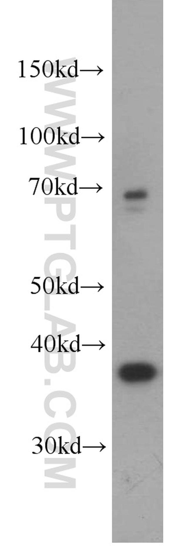 GALM Antibody in Western Blot (WB)