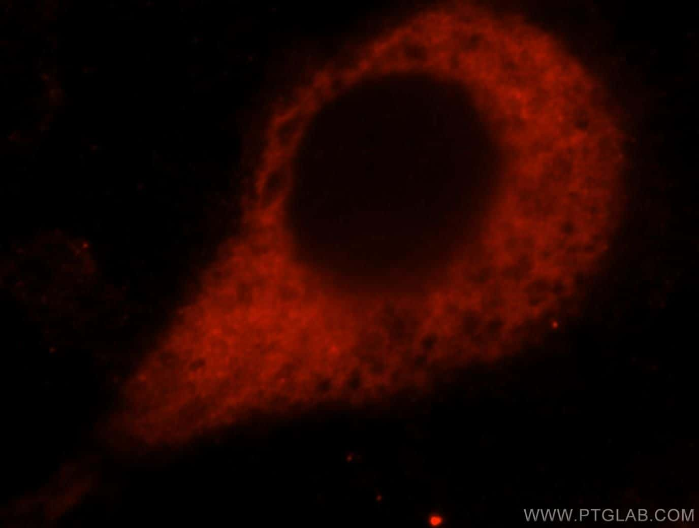 Amphiregulin Antibody in Immunocytochemistry (ICC/IF)