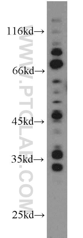 Amphiregulin Antibody in Western Blot (WB)