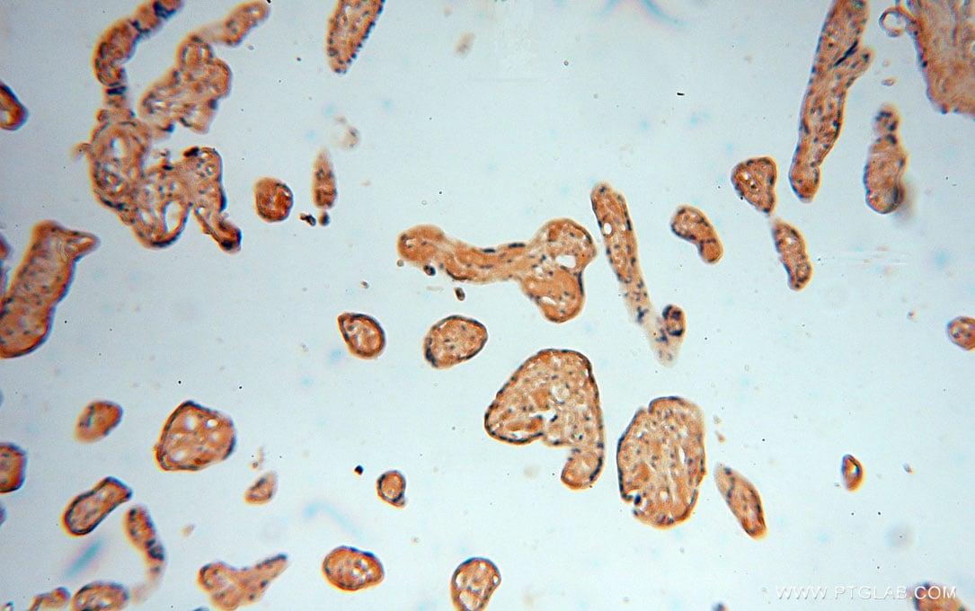 ALG5 Antibody in Immunohistochemistry (Paraffin) (IHC (P))